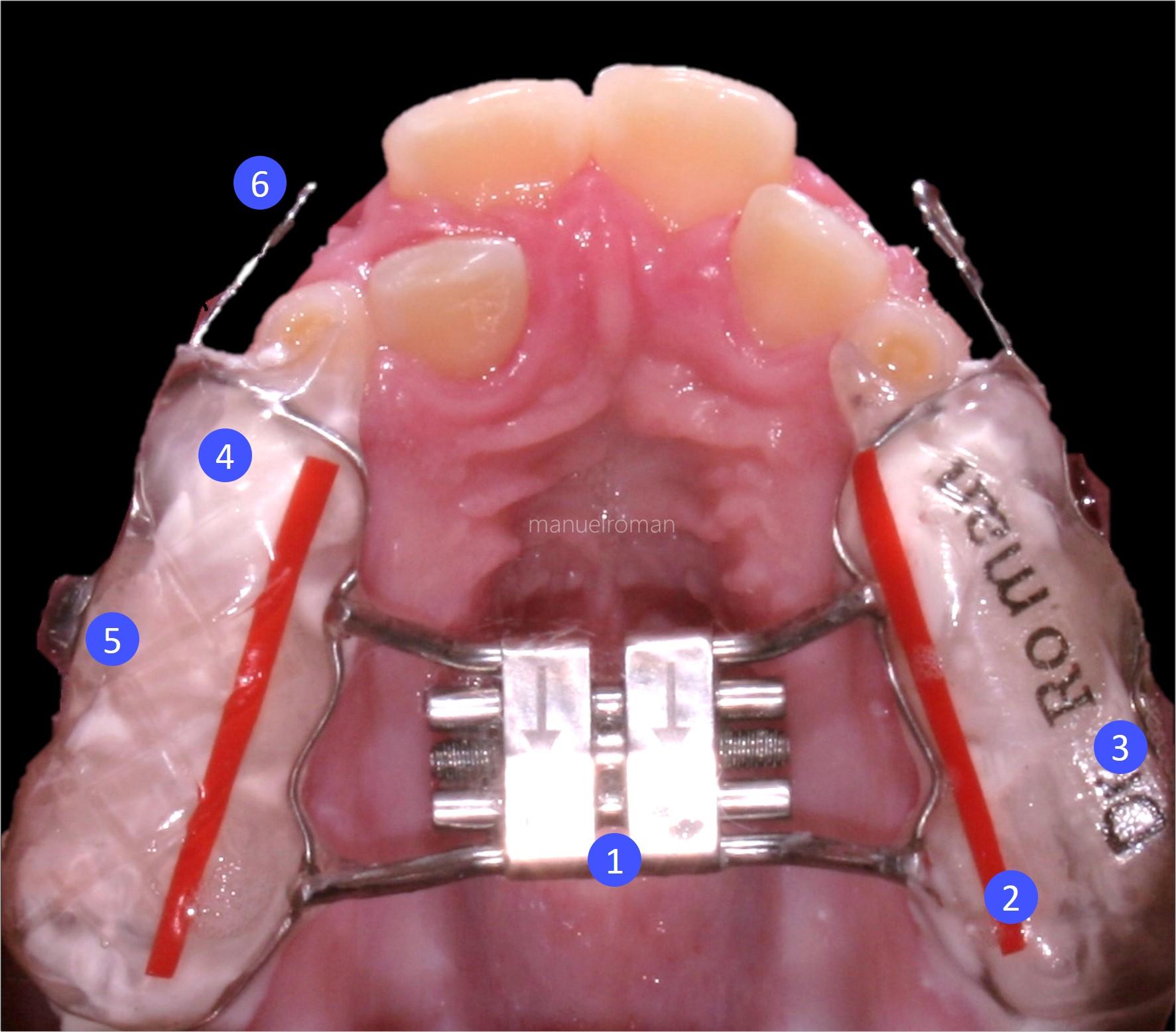 disyuntor ortodoncia