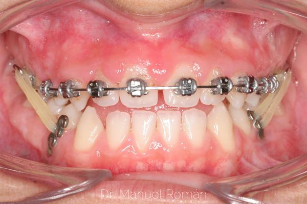 Miniplacas ortodoncia