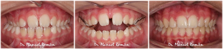 Disyuncion maxilar ortodoncia