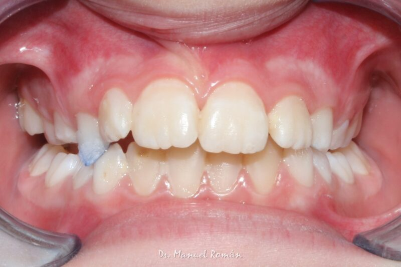 Pistas composite ortodoncia