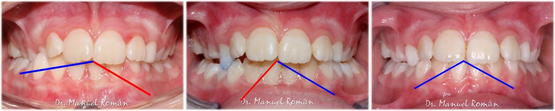 Dinamica mandibular ortodoncia