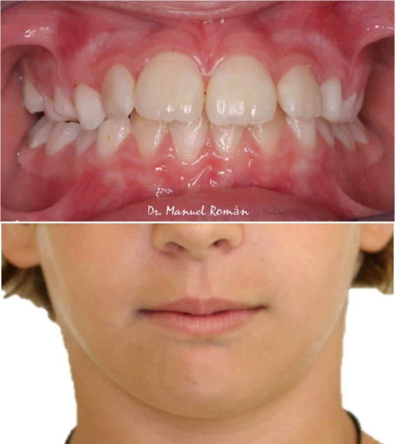 Simetria mandibular