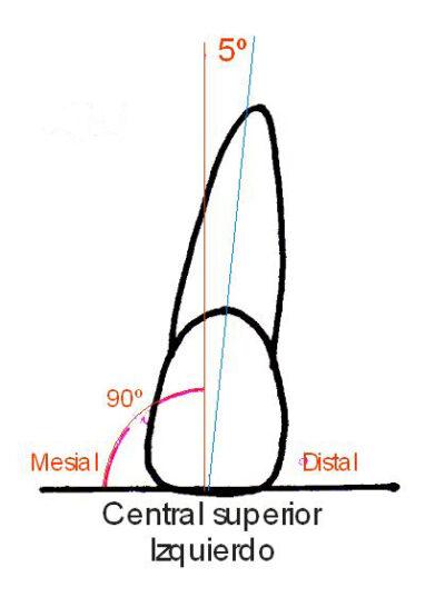 Angulación de la corona OCLUSIÓN