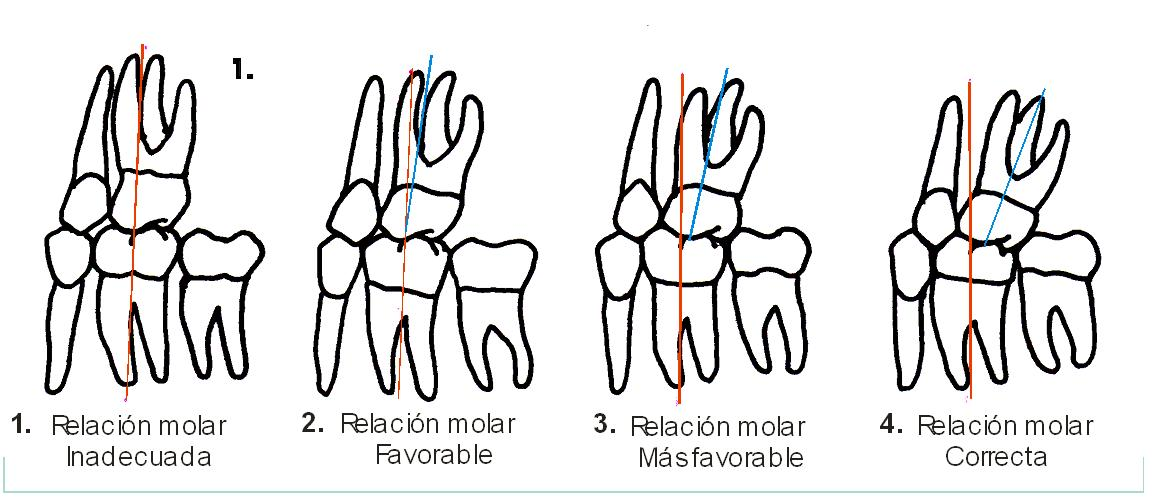 oclusion relacion molar
